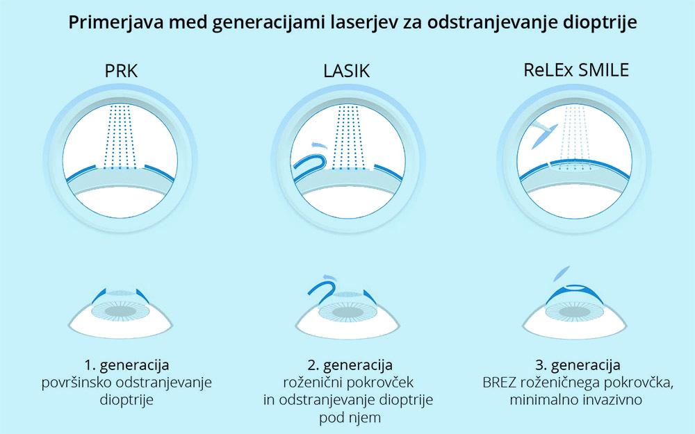 metode laserskih operacij oči></p>                          </div>                            <div class=