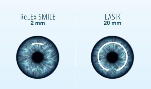 operacija oči po izbrani metodi